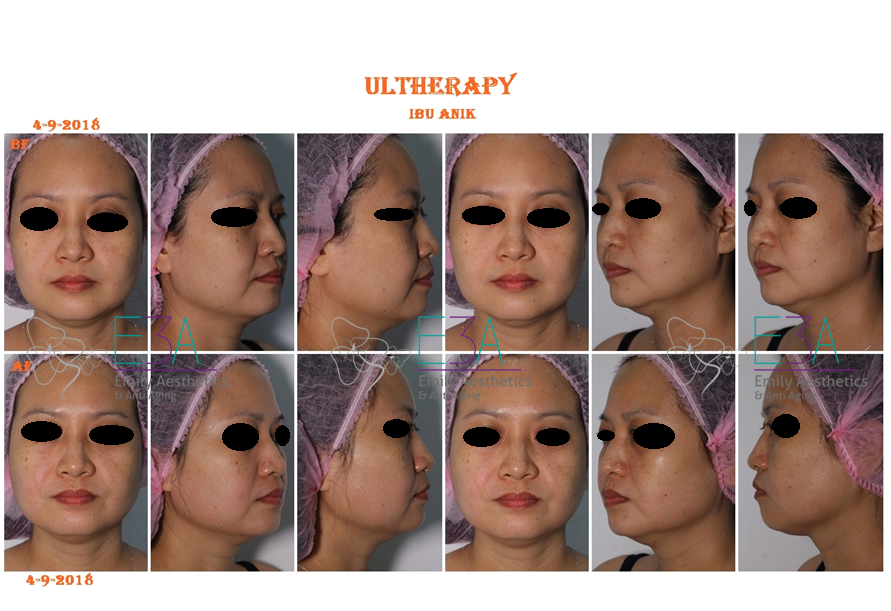 before after ultheraphy